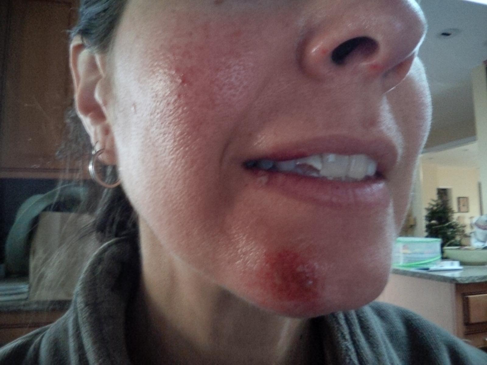 Christy face damage
